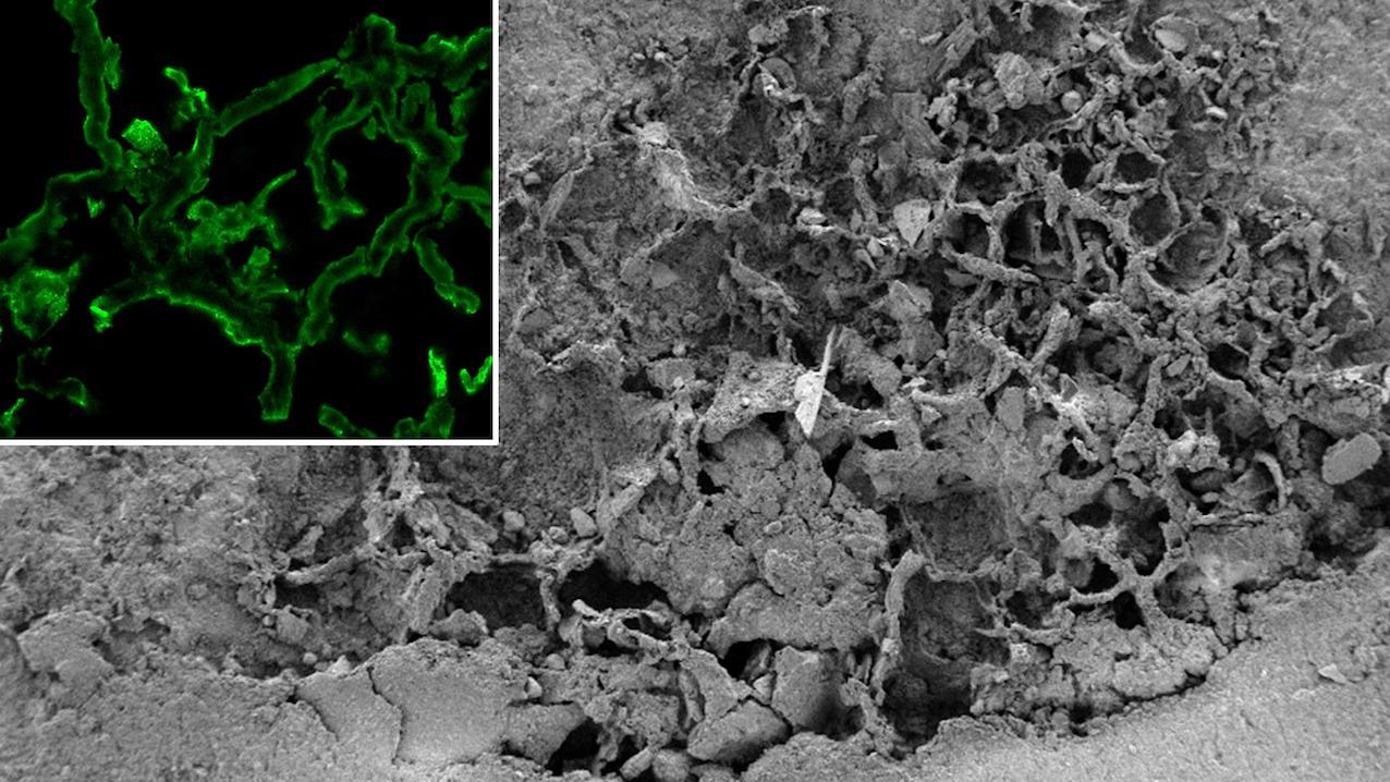 L'image en tête d'article, reproduite ici, représente le réseau fossilisé de filaments où des vestiges de chitine, un composé très dur que l'on trouve dans les parois cellulaires des champignons, ont été détectés. L'image grise est une vue obtenue par microcopie à balayage d'une portion de mycélium fossilisée, la partie verte, résulté d'un marquage par fluorescence de la chitine dans une portion de mycélium fossilisé, réalisé par microcopie confocale à balayage laser (échelle = 10 µm). © Steeve Bonneville/ULB